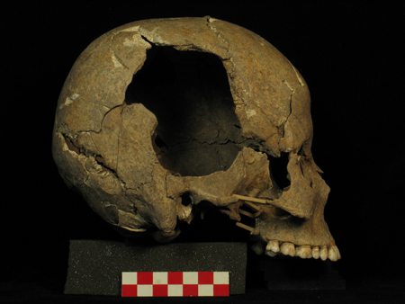 Skull of a 20-24 year-old woman.